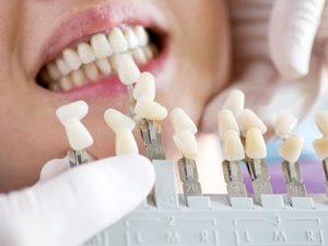 歯を並べる