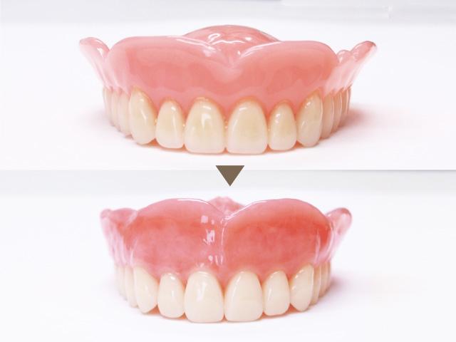 歯茎のカラーリング