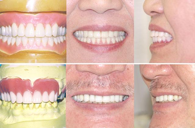 入れ歯の症例